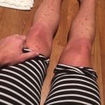 First Psoriasis Post