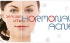 My Skin Won't Stop Me: Adult Hormonal Acne